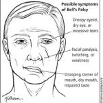 Ear Infections and Bell's Palsy